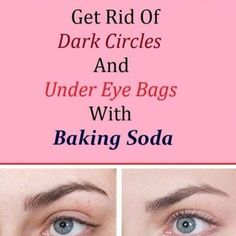 This is an amazing face mask that will help you eliminate the stains, the wrinkles and the acne scars. Frequently, the healing procedures of acne and pimples on the face end up in remains in the fo… Pimples Under The Skin, Acne And Pimples, Acne Scars, Scar Removal Cream, Acne Scar Removal, Homemade Toothpaste, Heal Cavities, Under Eye Bags, Skin Spots