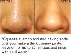 Removing tiny blackheads from your face - just did it and it works! Doesn't remove all but looks dramatically different.
