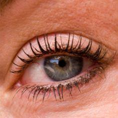 Natural Ways To Cure Thyroid Eye Disease