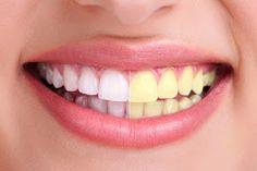 Apunta cómo puedes conseguir unos dientes más blancos con este sencillo truco.