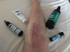 Family Wellness with CathyJELady: Testimony - Magnesium Speeds Recovery Magnesium Benefits, Magnesium Oil, Knee Surgery Recovery, Knee Replacement Surgery, What Is Need, Essential Oils, Essentials, Wellness, Skin Care