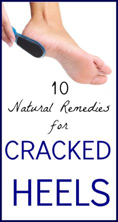 10 Natural Remedies for Cracked Heels - Seeds Of Real HealthSeeds Of Real Health |