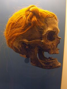 the osterby head with suebian knot.    thesuebian knotis a historical malehairstyleascribed to the tribe of thegermanicsuebi. the knot is attested bytacitusin his 1st century ce workgermania, found on art by and depictions of thegermanic peoples, and worn bybog bodies.