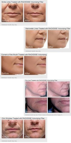 """RADIESSE® wrinkle filler does more than just """"fill-in"""" lines and facial wrinkles – it replenishes volume and stimulates the production of your own natural collagen with results that last up to a year or more.  It is a safe FDA-approved dermal filler that restores a natural, long lasting, youthful look.  It can restore facial volume as well as correct smile lines, Nasolabial folds and wrinkles around the nose and mouth."""