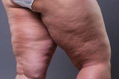 Jak się pozbyć cellulitu? Wykorzystaj kilka domowych produktów Kobieceinspiracje.pl Yoga Facial, Tummy Tucks, Liposuction, Want To Lose Weight, Fat Transfer, Medical Conditions, Plastic Surgery, Cellulite, Human Body