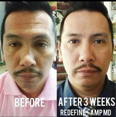 Guys are LOVING their results with Rodan and Fields AWARD winning skin care products! Check out Robert's AMAZING results after just 3 WEEKS of using our AMP MD Roller and Redefine regimen!!! He looks YEARS younger within weeks! An amazing transformation for less than the cost of our fancy iPhones! ;) Invest in yourself and your skin! Let me save you money, wrinkles and much more! :)