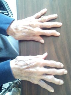 LIVING WITH ARTHRITIS **** These are my Mother's Arthritic hands :( they look painful. Mom used to tease that her two ring finger's knuckles were pregnant! Really miss you Mom!!