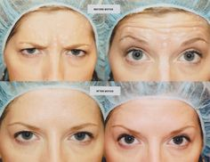 BOTOX® is supplied sterile in glass vials, each containing 100 units. BOTOX® must be diluted with sterile, nonpreserved saline immediately prior to its injection. Botox Brow Lift, Eyebrow Lift, Botox Injection Sites, Botox Injections, Botox Forehead, Forehead Lift, Excessive Underarm Sweating, Botox Cosmetic, Mommy Makeover