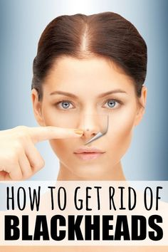 If you feel like you've tried all of the blackhead remedies known to mankind without any success, and desperately want to find the secret to getting flawless skin, this tutorial is JUST what you need to teach you how to get rid of blackheads once and for all!