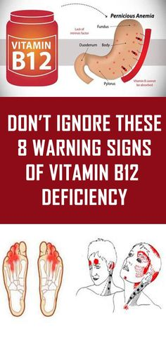 Vitamin deficiency is a common problem, which occurs when the lack of vitamin causes the body to produce abnormally large blood cells which cannot function properly. The condition is known as anemia. It is important to recognize the signs of anemia B12 Deficiency Symptoms, Vitamin Deficiency, Anemia Symptoms, Low Vitamin B12, Vit B12, Vitamin B12 Benefits, Vitamin B12 Injections, Mineral Deficiency, Vitamins For Energy