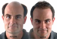 Provillus is the right solution if you're looking for an effective way to stop hair- loss, and re- grow good, healthy hair in a safe way.			http://ourprovillusreviews.com/buy-provillus/