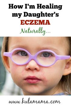 how to heal eczema naturally