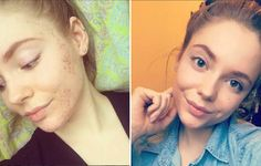 Woman Says a Vegan Diet Cured Her Acne for Good #acnecure #vegandiet