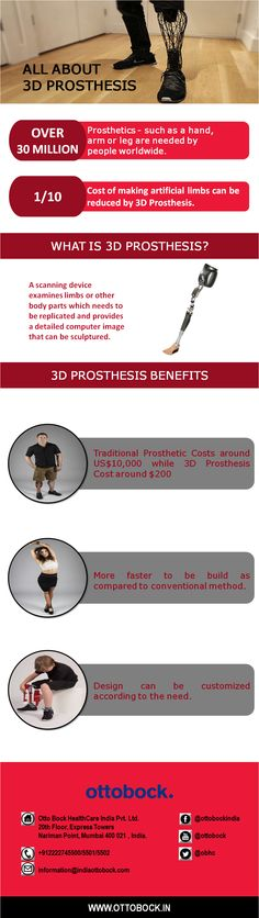 3D printing technology for prosthetics is rapidly emerging and will continue to evolve in designs/material choices for accelerated prosthetic integration.