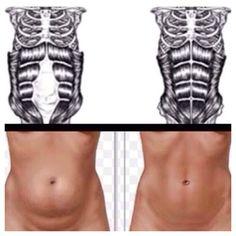 Exercises for Diastasis Recti (1)
