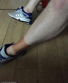 Aquele é um tornozelo muito marrom: O usuário de Facebook Karen Grieves afixou uma imagem do tornozelo de Derek Whiteside após o par aparentemente fell foul da falha falsa da peúga do sock  Read more: http://www.dailymail.co.uk/femail/article-4104836/Men-share-hilarious-pictures-feet-stained-deep-brown-reveal-women-lives-use-SOCKS-fake-tanning-mitts.html#ixzz4VUbyHgwL  Follow us: @MailOnline on T    That's one very brown ankle: Facebook user Karen Grieves posted an image of Derek Whitesid...