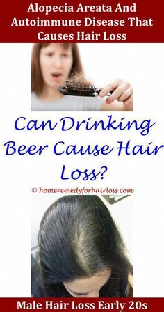 Hair Loss Brittle Nails And Hair Loss Vitamin Deficiency Uterine Fibroids Hair Loss Nettle Leaf Capsules For Hair Loss Fapping Hair Loss,Hair Loss hair loss home remedies olive oil acell prp for hair loss clinical trial herbs hair loss treatment hair pull Prp For Hair Loss, Argan Oil For Hair Loss, Baby Hair Loss, Best Hair Loss Shampoo, Biotin For Hair Loss, Vitamins For Hair Loss, Biotin Hair, Hair Shampoo, Excessive Hair Loss
