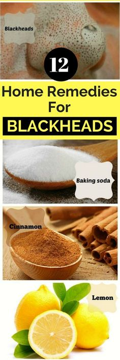 12 Home Remedies For Blackheads | Want to find out how to get rid of blackheads permanently? Look no further! These Home Remedies are cheap, fast, and actually WORKS!