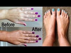 How to Remove Tanning from Hands and Feet instantly - 100% effective