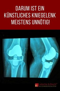 Nowhere else are so many artificial knee implants implanted as in Germany. But the operations are often unnecessary because the pain is caused by muscular and fascial tension and this cannot change an artificial knee joint! How To Start Exercising, Commission On Human Rights, Blog Love, Muscular, Healthy Tips, Fun Workouts, Ayurveda, Fitness Tips, Tips