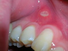Do you have any ulcers on your tongue or in the mouth? Here are some homeopathic medicines for Natural Health Remedies, Home Remedies, Causes Of Mouth Ulcers, Best Mouthwash, Gum Disease Treatment, Homeopathic Medicine, Lose Weight Naturally, Dental Health, Dentistry