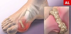 Swollen Feet Remedies Gout is an arthritis type, caused by the accumulation of uric acid in the body, which leads to the formation of crystals in and around joints. It is characterized by inflammation and intense pain in t