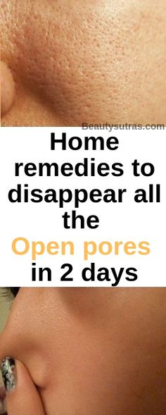 Here are some of the best remedies for you to try, in order to get rid of open p. Here are some of the best remedies for you to try, in order to get rid of open pores quickly. Face Treatment, Skin Treatments, Open Pores On Face, Haut Routine, Get Rid Of Pores, Beauty Hacks For Teens, Beauty Ideas, Beauty Solutions, Face Home