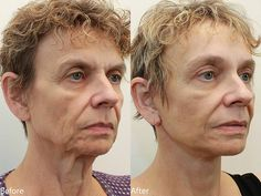 Dr. Darm, MiniLift Before and After - D.M.