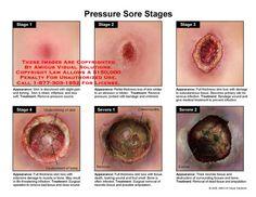 stage 2 pressure sore | ril - bed sores / pressure sores