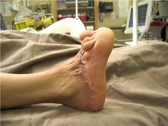 Post-burn foot contracture. Burn scar contracture is the tightening of the skin after a second or third degree burn. When skin is burned, the surrounding skin begins to pull together, resulting in a contracture. It not treated promptly, the scar can result in restriction of movement around the injured area