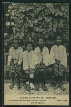 http://www.postcardman.net/202116.jpg  Mandalay : St. John's Leper Asylum, Leper Boys (10 to 15 years old).