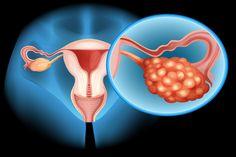 Rakovina vaječníků: Příznaky rané fáze nemoci, jejichž včasné určení vám může zachránit život Ovarian Cancer Screening, Treatment For Ovarian Cancer, Ovarian Cancer Symptoms, Ovarian Cyst, Laura Clark, Ich Bin Dick, Natural Cures, Pcos