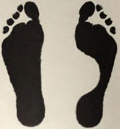 """Left is a """"flat-foot""""."""