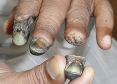 #sabotage Gross pic of someone who is losing his fingers because he took #Krokodil for his HIGH.   Disrespect the sacred home your body lives in and this is the result.