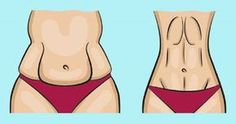 Take 4 Tablespoons Of This Every Morning And Say Goodbye To Clogged Arteries High Blood Pressure And Bad Cholesterol! Belly Fat Diet Plan, Burn Belly Fat Fast, Lose Belly, Fat Belly, Types Of Belly Fat, Clogged Arteries, Clean Arteries, Hip Problems, Bloated Belly