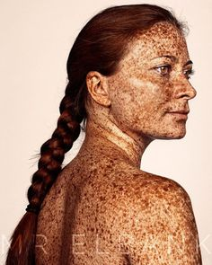 freckles @mrelbank female red hair face, back, arms covered in freckles