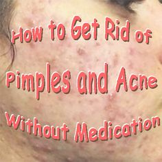 How to Get Rid of Pimples and Acne Without Medication Blood Sugar Solution, Beyond Skin, How To Get Rid Of Pimples, Facial Exercises, Lower Blood Sugar, Hair Raising, Lower Blood Pressure, Skin Problems, Understanding Yourself