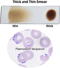 Thick and thin smears of a patient's blood sample are the gold standard for the diagnosis of malaria. Malaria is an acute febrile illness caused by 4 major types of Plasmodium: falciparum, ovale, vivax and malariae. The disease is transmitted to humans via the female Anopheles mosquito. Plasmodium sporozoites from Anopheles saliva invade and multiply in hepatic cells. Lysis of the hepatic cells leads to release of the parasite into the blood stream.