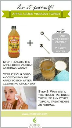 Skin Care For Acne Apple cider vinegar toner is great for acne because it returns the acidity to our skin and restores the acid mantle. See how to make it here! Apple Cider Vinegar Toner, Braggs Apple Cider, Apple Cider Vinegar Remedies, Apple Cider Face, Benefits Of Cider Vinegar, Apple Cider For Acne, Bath Body Works, Acne Treatment, Skin Treatments