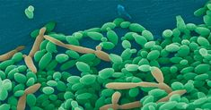 Candida tropicalis works alongside two other bacteria which are known to cause Crohn's disease, researchers from Case Western Reserve University, Cleveland, found. Yeast Infection No More, Recurring Yeast Infections, Yeast Infection Symptoms, Yeast Infection Treatment, Ulcerative Colitis, Crohns, Medical Prescription, Cleveland, Health Tips