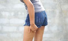Čo pomáha na vyrážky na stehnách? Takto upokojíš aj svrbiacu a začervenanú pokožku Denim Shorts, Women, Fashion, Moda, Fashion Styles, Fashion Illustrations, Woman, Jean Shorts
