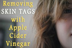 Removing skin tags with apple cider vinegar is not only effective but also painless and much cheaper than visiting the doctor. Find out how to do it!
