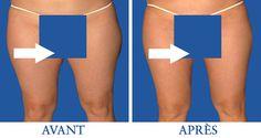 Cette partie du corps est la plus difficile à affiner, cet article peut vous aider