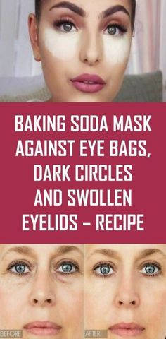 Baking Soda Mask Against Eye Bags, Dark Circles And Swollen Eyelids – Recipe Face Packs And Masks Baking Soda Mask, Baking Soda Shampoo, Baking Soda For Face, Baking Soda Uses, Baking Soda Hair Growth, Baking Soda Face Scrub, Baking Soda Nails, Baking Soda Under Eyes, Baking Soda Facial
