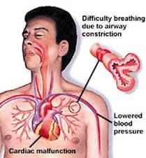 anaphylactic shock critical care case study Kontou-fili k acute st-segment elevation myocardial infarction after amoxycillin-induced anaphylactic shock in a  alan is a critical care  case study #2.