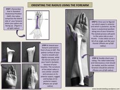 Orienting the radius using your own forearm