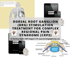 Dorsal Root Ganglion (DRG) Stimulation Treatment For Complex Regional Pain Syndrome (CRPS)   Burning Nights CRPS Support