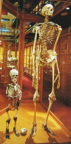 """The tall skeleton is 7' 6"""" and the smaller is the skeleton of a midget prostitute.  She died after doctors had to forcibly remove a baby from her because she was too small to give birth normally."""