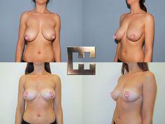 Angleichung und Verkleinerung der Brust Breast, Swimwear, Fashion, Wels, Linz, La Mode, Fashion Illustrations, Fashion Models