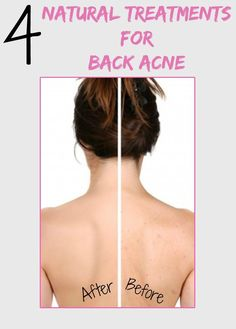 DS exclusive. Women's Mag Blog: 4 Natural Treatments for Back Acne: Women's Mag Blog: 4 Natural Treatments for Back Acne